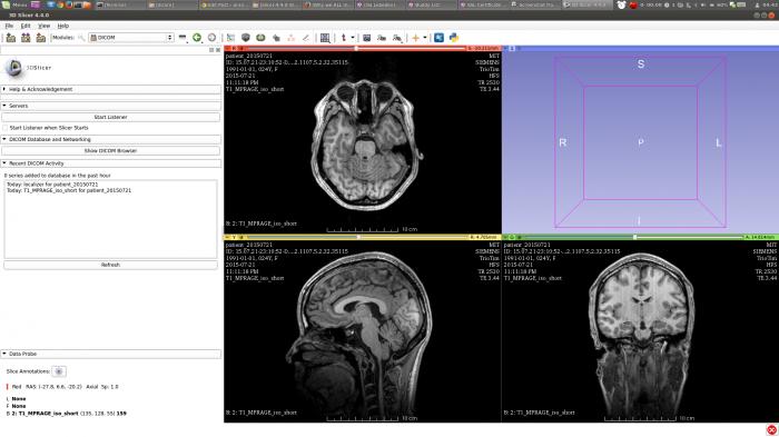Screenshot from 2015-07-29 04:43:05